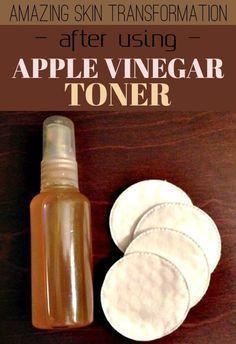 Amazing skin transformation after using apple vinegar toner.