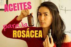 aceites para la rosácea, cremas para la rosacea, hidratar la piel con rosacea, remedios caseros para la rosacea