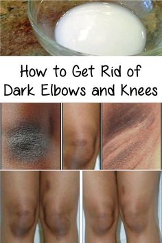 I will give you some ways and natural remedies that will help you get rid of the dark elbows and knees problems, at home, fast and cheap.