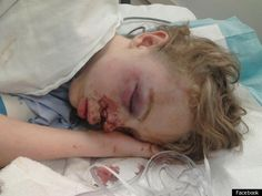 Oklahoma Middle Student Seriously Injured In School Bullying, Undergoes Surgery (GRAPHIC VIDEO)