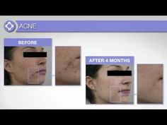 #skinmanagementsystem #janmarini #ance #agingskin  This system is great for all skin conditions and types 904-250-0837 email:goodskinstudio1@gmail.com