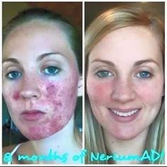 WOW! Her skin completely transformed with Nerium's top selling Age-Defying Night Cream. PROOF that Nerium isn't only for wrinkles and fine lines! Everyone can benefit from Nerium!!! #Nerium #NeriumAD #agedefying #antiaging #skincare #bestskincare #loveyourskin #getgorgeousskin #wrinkles #finelines #discoloration #skintone #darkcircles #realpeople #realresults #messageme #longisland #suffolkcounty #ny #newyork #li #suffolk #motivation #beauty #success #love #picoftheday #allnatural