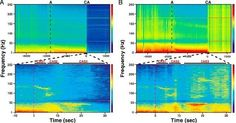 Possible Hints of Consciousness After Death Found in Rats For a brief time after their hearts stop beating, electrical activity that some…