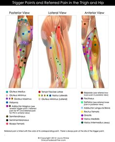 I wanted a single-page resource that I could have handy in the gym to show all hip/thigh trigger points and referred pain. I scoured books and the web, but I was not having any luck finding images . Hip Pain, Knee Pain, Back Pain, Dry Needling Therapy, Referred Pain, Acupressure Treatment, Acupressure Therapy, Trigger Point Therapy, Reflexology Massage