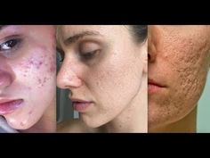 If you have acne, here are 13 beauty gurus to follow on YouTube    www.cassandrabankson.com