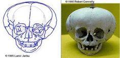 1995, Robert Connelly      Fat Head Skull