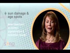 Sun Damage Interview | Sona MedSpa