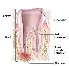 The portion of the Tooth seen in the oral cavity is called the Crown of the tooth and portion which is anchored within the jaw bone is called the Root. Depending on the size, location and function a tooth may have one or more roots. A Root canal as the name suggests is the space within the root of a Tooth.     For More information visit @ www.toothcare.in/root-canal-treatment.html