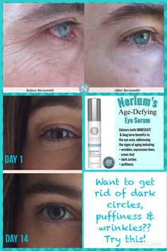 Want to get rid of dark circles, puffiness, fine lines and wrinkles? Try this!! Nerium's age-defying eye serum! Powered by the patent-pending SIG-1191 molecule and I-FIL4R derived from white lily and Brazilian ginseng, the serum offers both immediate and long-term benefits! http://www.nerium.com/shop/vanessasolomon/products