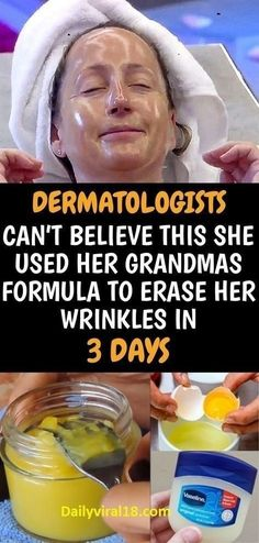 She Used Her Grandmas Formula For Wrinkles. They Were Lost In 3 days. Dermatologist Can't Believe It Believe, Tips Belleza, Health And Beauty Tips, Skin Cream, Vaseline, Face Care, Beauty Care, Beauty Hacks, Natural Skin Care