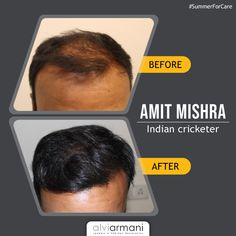 Hair loss is more serious during and one must protect their hair. To know more about your hair, book an appointment today. Call us at : . Hair Transplant In India, Fue Hair Transplant, Natural Hair Care, Natural Hair Styles, Hair Restoration, Hair Loss, Appointments, Clinic, Medical
