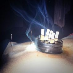 Moxibustion on patients abdomen during an acupuncture treatment!