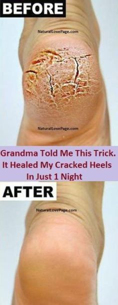 Grandma Told Me This Trick. It Healed My Cracked Heels In Just 1 Night – Toned