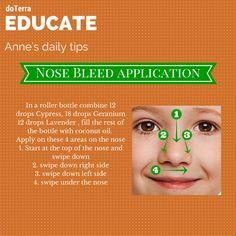 Nose Bleed Application #doterra #nosebleeds http://aromaticsciencemadesimple.blogspot.com/