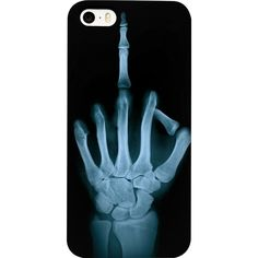 Naughty X-Ray Finger Flip Phone Case ($30) ❤ liked on Polyvore featuring accessories and tech accessories