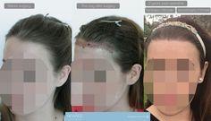 Diese Patientin hatte zwei Operationen für die vordere Haarlinie.Das Ergebnis nach 2 Jahren.  #haartransplantation