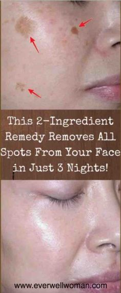 This Homemade mixture for three nights will give you a clean and smooth skin – Set Run . .