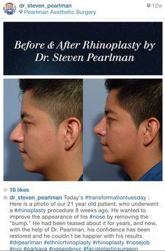 21 year old male patient Pre-op and Post Op 8 weeks