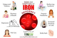 Iron deficiency symptoms include fatigue, dizziness, and cold extremities. In this article, learn about other symptoms and getting an iron deficiency diagnosis. Iron Deficiency Symptoms, Anemia Symptoms, Hypothyroidism, Health And Nutrition, Health And Wellness, Health Fitness, Health Care, Get Healthy, Healthy Tips