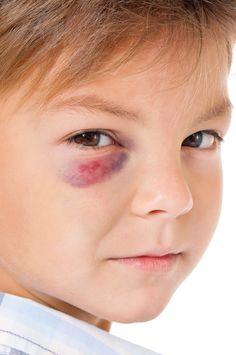 Verletzte Kita-Kinder – So gehen Sie mit Beulen & Co. um