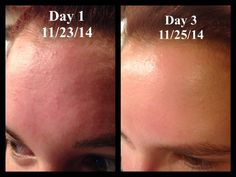 This is my story and it's pretty simple. I had awful bumps all over my forehead and nothing was helping me, until I was introduced to Seacret. This is my before and after only three days apart. Pretty incredible results from amazing products! www.seacretdirect.com/ahenning