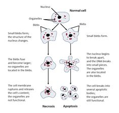 Structural changes of cells undergoing necrosis or apoptosis - Necrosis - Wikipedia, the free encyclopedia