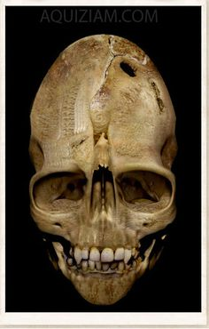 WEIRD ANDOVER VAMPIRE SKULL   Is this weird and vertically elongated Skull the one from Andover? Real or Hoax - We're not sure but it's a fantastic picture