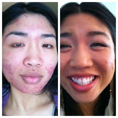 PRINCETON UNIVERSITY IS PARTNERED WITH NERIUM TO BRING US A REVOLUTION IN ANTI AGING. MESSAGE ME ON MY SITE  MARYNY.NERIUM.COM