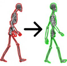 """Abnormally short and tight muscles effect resting tone and postural alignment. Flexibility and proper posture is most important for individuals who have jobs that require """"static"""" standing or sitting for long periods of time. A sedentary lifestyle that restricts movement is the primary reason for the chronic neck, back and shoulder pain. http://rpm-therapy.com/2011/benefits-of-stretching/"""