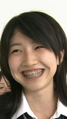 Cute Girls With Braces, Braces Tips, Brace Face, Perfect Teeth, Dental Office Design, Tao, People, Photography, Beautiful