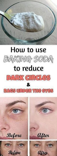 How To Use Baking Soda To Reduce Dark Circles And Bags Under The Eyes #facecreamsbakingsoda