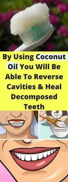 Coconut Oil Uses - By Using Coconut Oil You Will Be Able To Reverse Cavities And Heal Decomposed Teeth - seeking habit 9 Reasons to Use Coconut Oil Daily Coconut Oil Will Set You Free — and Improve Your Health!Coconut Oil Fuels Your Metabolism! Oral Health, Dental Health, Dental Care, Health And Wellness, Teeth Health, Healthy Teeth, Kidney Health, Dental Hygienist, Health And Fitness
