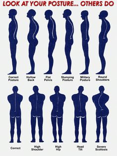 Compare your posture.    http://www.elitespinecenter.com/