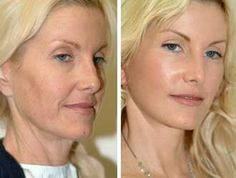 Before/After Vampire Facelift Beauty Care, Beauty Hacks, Hair Beauty, Cosmetic Fillers, Anti Aging, Goji, Anti Ride, Belleza Natural, Fett