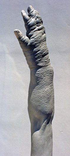 Thinner-arm-03 - Teves