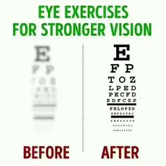 Health And Fitness Articles, Good Health Tips, Natural Health Tips, Gym Workout For Beginners, Gym Workout Tips, Eye Sight Improvement, Vision Eye, Healthy Eyes, Face Yoga