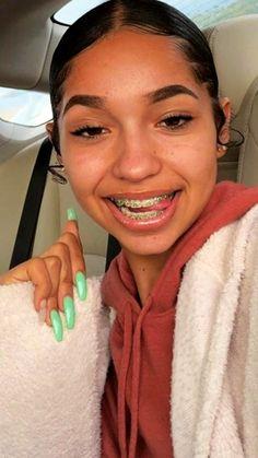 Cute Girls With Braces, Cute Braces Colors, Green Braces, Braces Retainer, Braces Tips, Getting Braces, Invisible Braces, Brace Face, Piercings