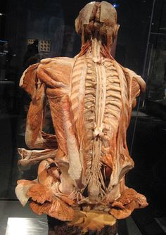 intricacies of spinal cord and back - almost all of spinal bone removed for… Anatomy Art, Human Anatomy, Gunther Von Hagens, Bodies Exhibit, Gross Anatomy, Muscle Anatomy, Medical Facts, Mad Science, Spinal Cord