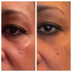 32 day results with Nerium!!
