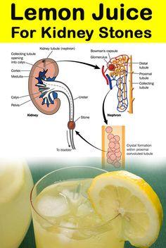 Lemon Juice for Kidney Stones Treatment