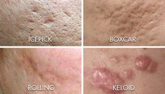How to Get Rid of Acne Scars Overnight Fast | HowHunter