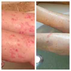 Amazing...32 pound release plus a lifetime psoriasis irritation almost gone with topical treatment of Arbonne ABC Lotion