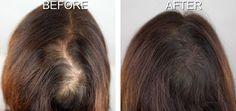 Stop Hair Loss Women