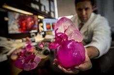 Understanding your kidney tumor in 3D