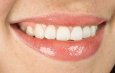 What are the best teeth whitening products?
