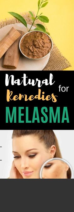 The overactive pigmentation of the skin or melasma is a common condition, especially to those constantly exposed to the sun's rays. The over production of melanin is another cause of this. Not to be confused Healthy Habits, Healthy Tips, Proper Squat Form, Turmeric Spice, Health And Nutrition, Health Care, Beautiful Haircuts, Brown Spots, Freckles