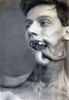 Plastic Surgery in World War I [WARNING: Some of the following images might be disturbing!] (10 pictures) | memolition