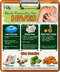 Home Remedies for Hives Turmeric Turmeric is known for its anti-inflammatory properties and helps stimulate the body's natural anti-inflammatory corticosteroids. It is also considered a very effective natural antihistamine and antioxidant for hives and Home Remedies For Hives, Hives Remedies, Top 10 Home Remedies, Natural Home Remedies, Natural Healing, Herbal Remedies, Health Remedies, Snoring Remedies, Holistic Remedies