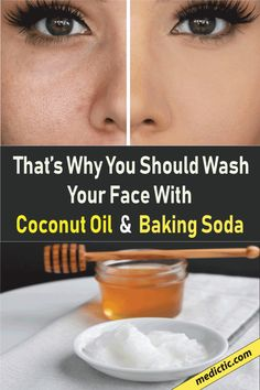 This baking soda and coconut oil face mask for acne scars can deeply cleanse the skin, exfoliate, and forestall acne beat one! You've undoubtedly seen tons of baking soda and coconut oil face mask recipes everywhere Baking Soda Face, Baking Soda Shampoo, Baking With Coconut Oil, Coconut Oil For Face, Organic Skin Care, Natural Skin Care, Natural Health, Anti Aging, Natural Bleach