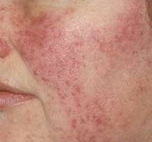 OREGANO OIL FOR ROSACEA :New research reveals bad bacteria on the skin may cause rosacea. And we already know that it contributes to acne. The oil's bacteria-busting power can help eliminate bacteria. Add a little sesame oil to the oregano oil to dilute it. Then soak a cotton ball in it and dab on the affected area nightly. Apply it before bed so your body has all night to absorb it.